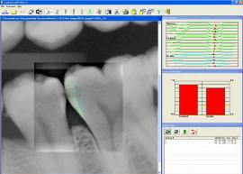 Cavity Detection Software in Scotch Plains NJ - Dentalcare Associates