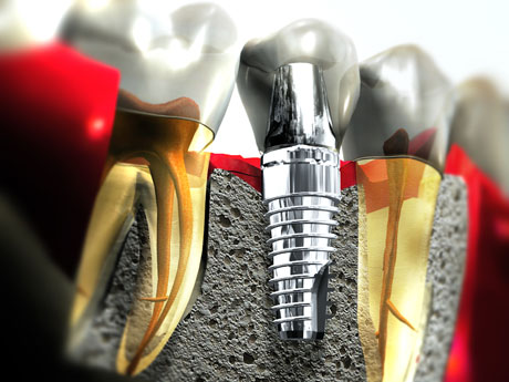 Implant Dentistry in Scotch Plains NJ - Dentalcare Associates