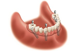 Sterling Heights Same Day Dental Implants - Revitalize
