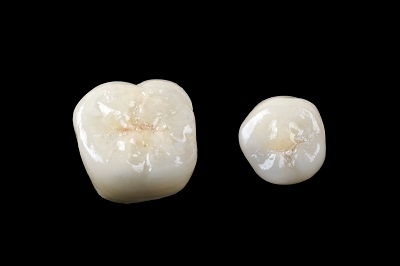 porcelain crowns in jeffersonville