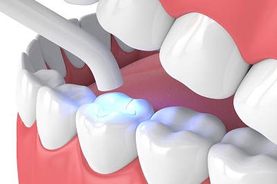 3D render of dental lamp curing composite filling on tooth