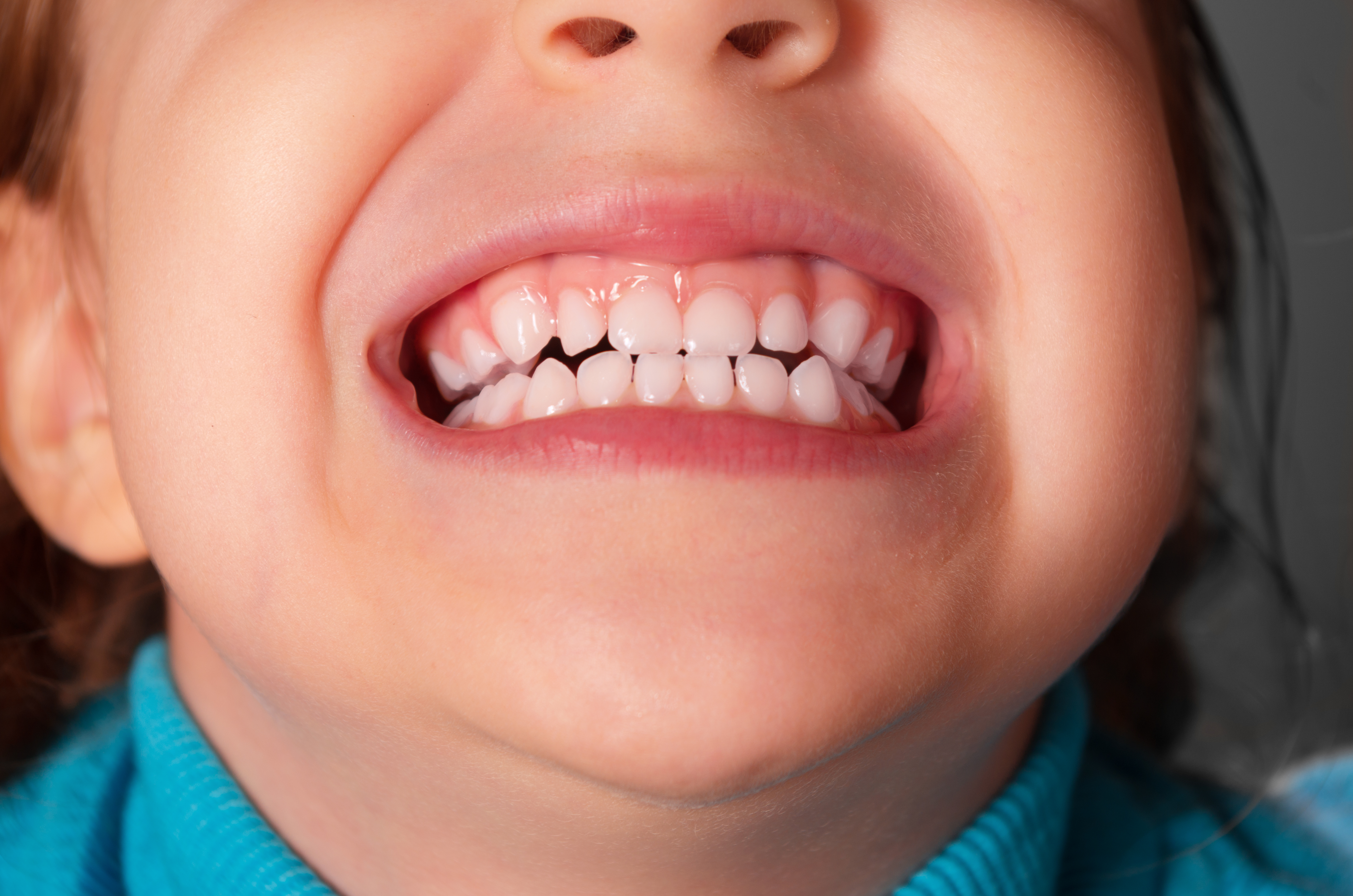 Picture of a smiling child - Ontario children's orthodontics