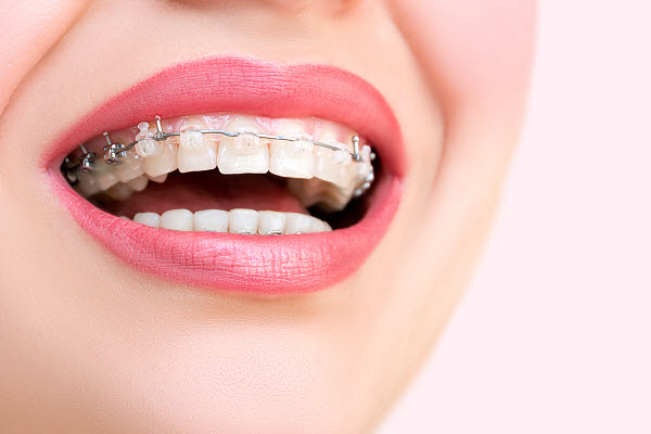Picture of a smiling adult with braces - Orthodontics  in Ontario - Ontario orthodontics