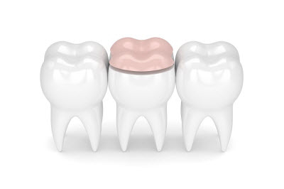 protect your teeth with onlay restorations in elk grove
