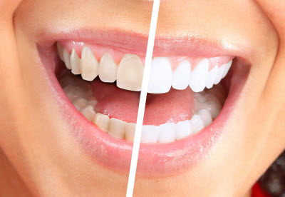 M.J. Waroich, DDS - Same-Day Whitening in Washington D.C.