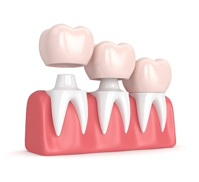 3d render of replacement crowns