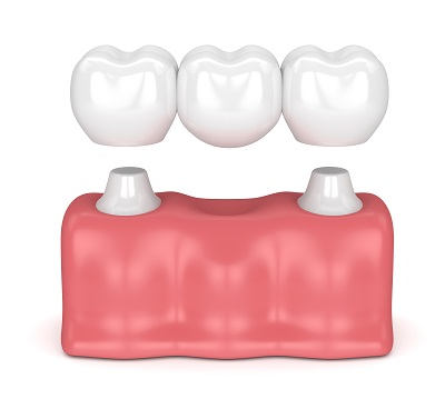 3D rendering of dental bridge