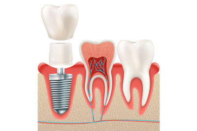 vector illustration of dental implant and tooth cross section