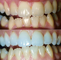 A tooth whitening patient enjoys great results.