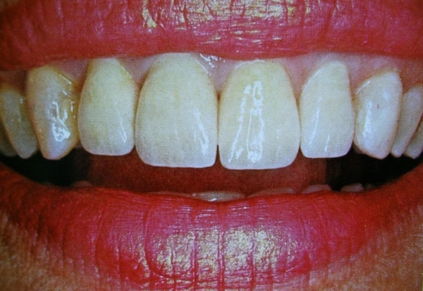 teeth whitening Kelowna B.C.