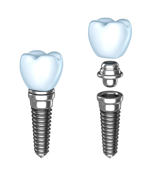 Dental-Implants-in-Brampton-ON-Dentistry-Tridont-Dental-Centre