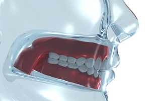 Philadelphia Tooth Extractions - Wisdom Teeth Removal - Pain Relief