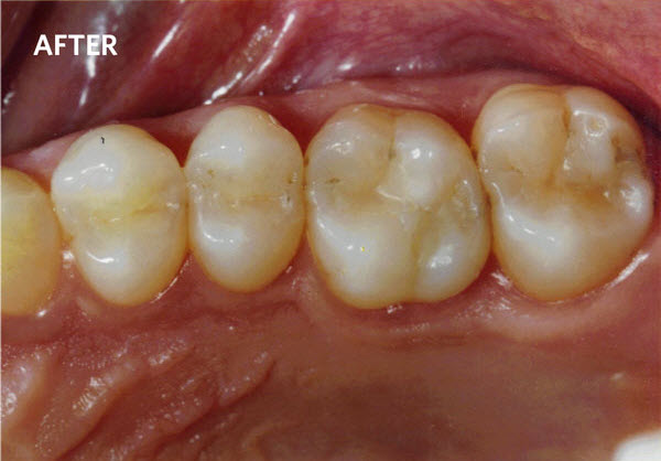 Smiling Teeth Showing the Difference that Quality Cosmetic Dentistry Can Make