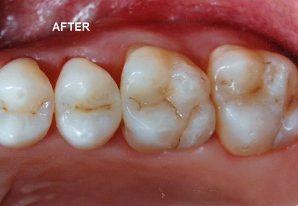 Teeth Look Healthier and More Vibrant After Visiting Studio Z Family Dentistry