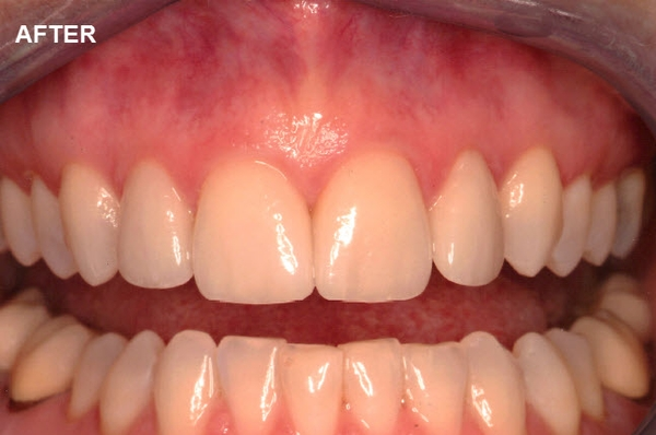 Smile Gallery Image of Improved Teeth After Visiting Studio Z Dentistry