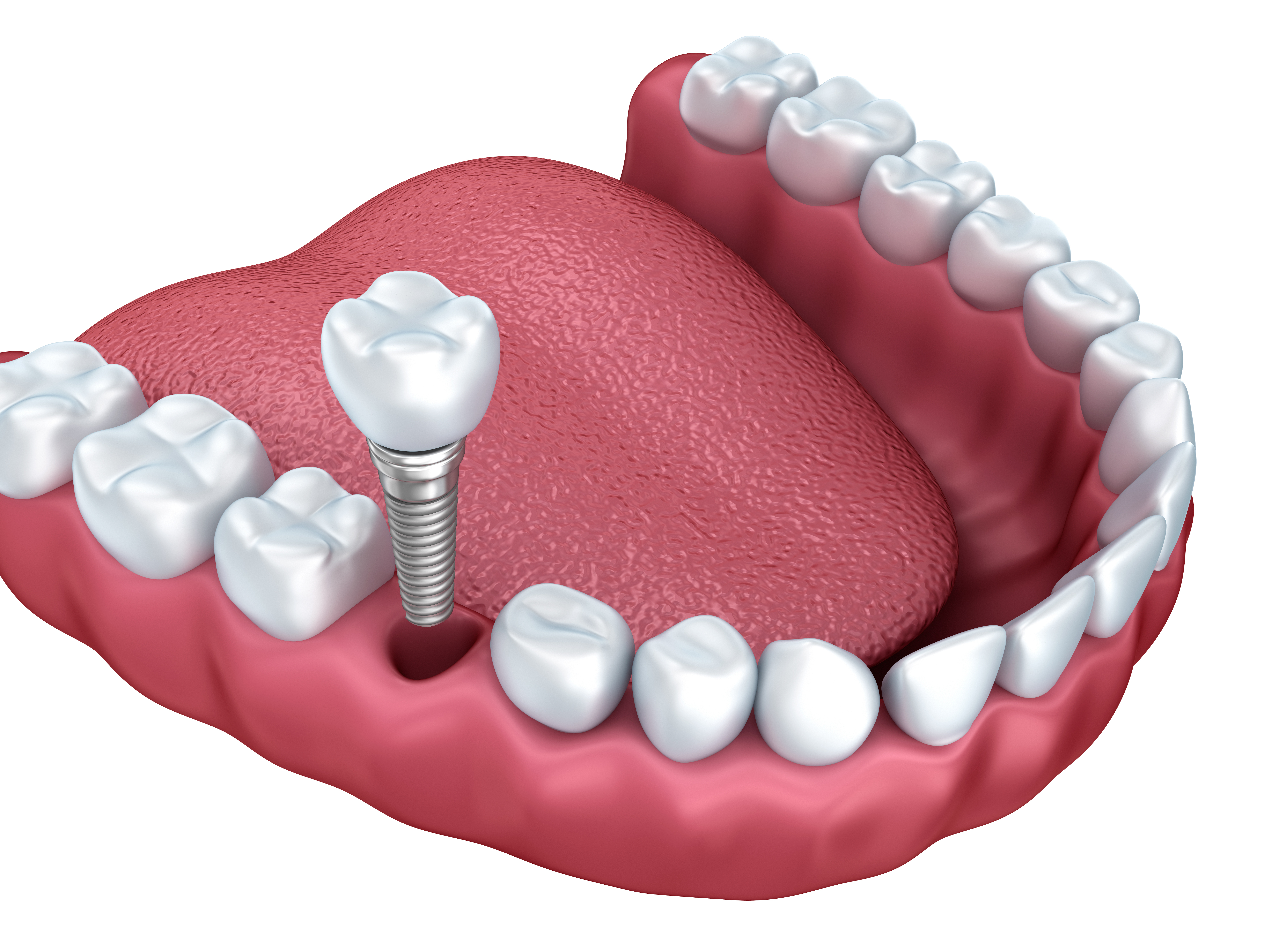 Dental Implants Jeffersontown KY