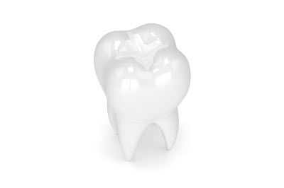 dental crowns and fillings