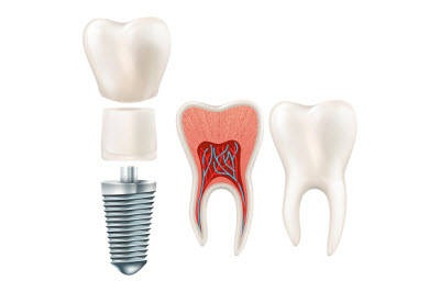 implant restorations in granbury