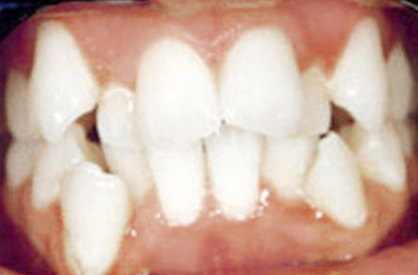 BEFORE Fastbraces - kountze, lumberton, silsbee, woodville, warren, saratoga, village mills, spurger, hillister, jasper, buna, kirbyville, votaw, zavalla, batson, orange, vidor, beaumont, orange