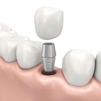 Replacing missing teeth with dental implants in Moreno Valley