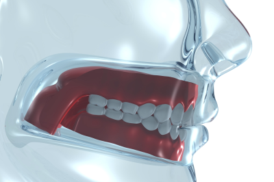 oral surgery in Kettering