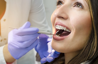 woman with braces getting a dental checkup