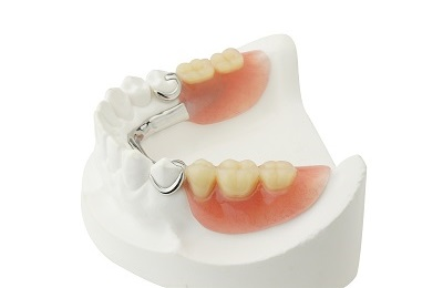 partial dentures over white background