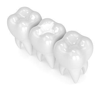 3d render of teeth with white composite filling over white background