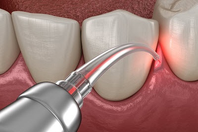 Gum correction surgery with laser