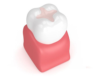 3D render of dental filling