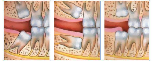 Denville New Jersey Wisdom Tooth Extraction