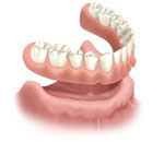 Removable Full Denture Without Implants