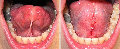 Before and after picture of a frenectomy
