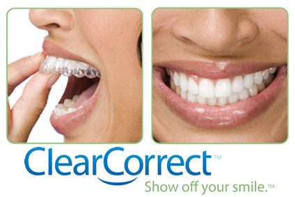 Invisalign Colorado Springs