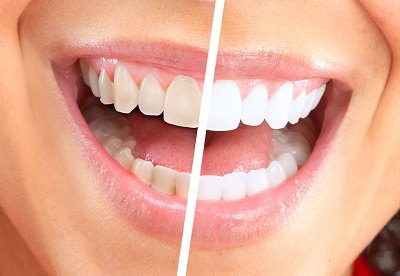 Teeth Whitening at Serenity Dental in Littleton, CO