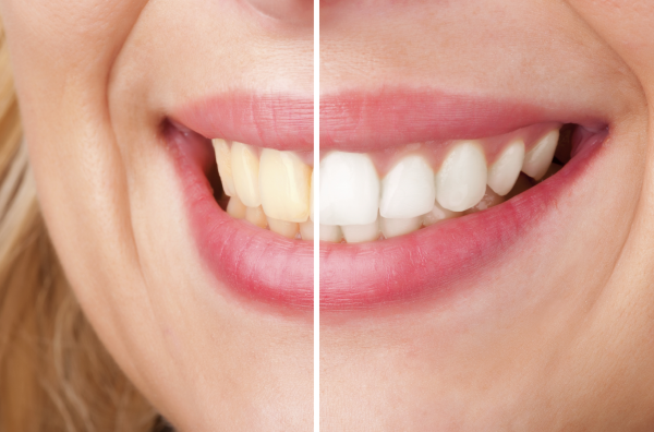 Zoom! Teeth Whitening Before and After