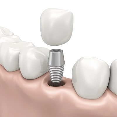 dental implants are a great option to replace cracked or missing teeth. contact hillcrest dental group to see if dental implants are the right options for you.