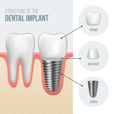 schedule your consultation with our doctors at hillcrest dental group for your dental implant treatment plan.