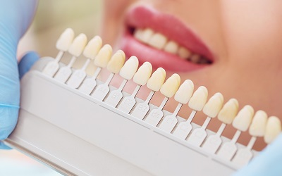 woman measuring tooth color for veneer treatment