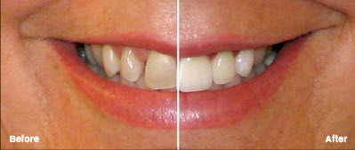 Veneers in Chandler, AZ
