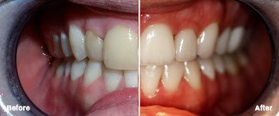 Veneers and Crowns in Chandler, AZ