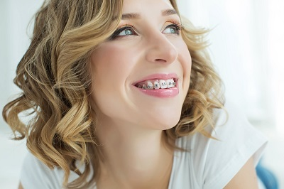 blonde woman with braces