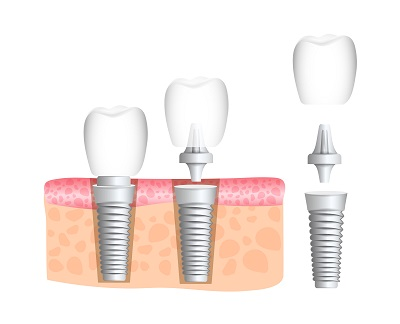 Realistic dental implant structure with all parts