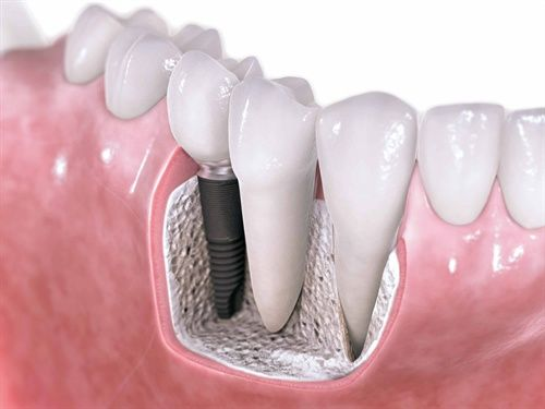 dental implants rancho