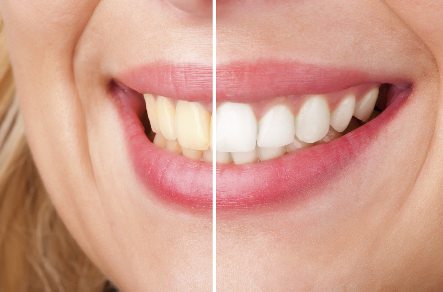 Teeth Whitening in North Canton, OH