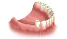 Support Partials with Dental Implants in Rocklin