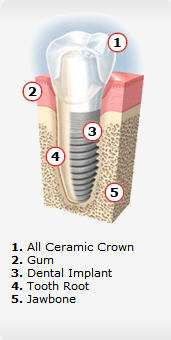 Dental Implant Placements in Rocklin, CA
