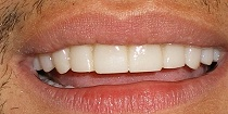 After Cosmetic Dentistry in Hayward, CA 94544