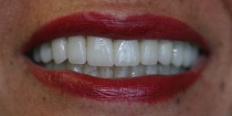 After Cosmetic Dentist in Hayward, CA 94544