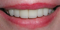 After Cosmetic Teeth Makeover - Hayward, CA 94544